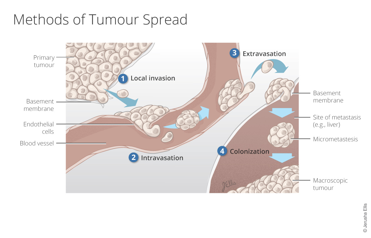 Methods of Tumour Spread